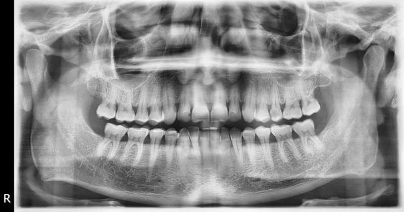 Imagen de un radiografía dental